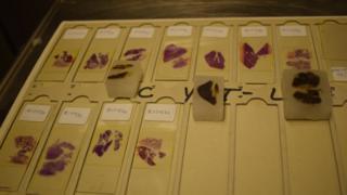 Muestras de los órganos preservadas en bloques de parafina.