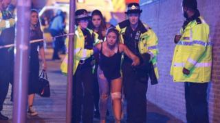 曼彻斯特体育场受伤的歌迷