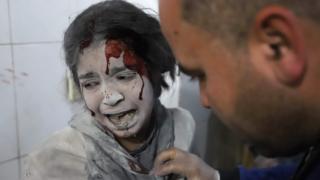 Uma menina síria recebe tratamento em Ghouta oriental, em março deste ano