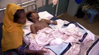 อาซิซู ฮัค วัย 15 ปีได้รับบาดเจ็บสาหัส เสียขาทั้งสองข้าง หลังเหยียบกับระเบิดขณะหลบหนีการปราบปรามเข้าไปในบังกลาเทศ