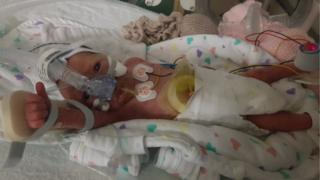 Baby Lacey in hospital