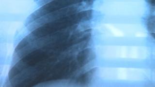 plain view x-ray