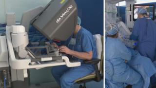 هكذا تجري عمليات زراعة الكبد باستخدام الروبوت دافنشي