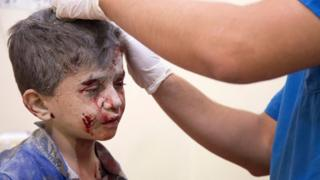 A Syrian boy receives treatment at a make-shift hospital following air strikes on rebel-held eastern areas of Aleppo in September