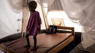 Un niño con desnutrición severa sobre su cama en un centro de rehabilitación en Tshikapa, RDC.