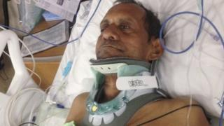 Sureshbhai Patel in Hospital in Alabama in this undated family handout photo