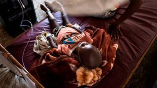 unicef prévient que les enfants sont en danger, plusieurs milliers risquent de mourir de malnutrition