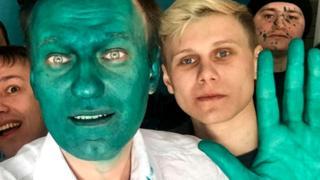 Алексей Навальный со сторонниками - после инцидента с зеленкой