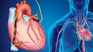 'وصله قلبی' کمک سلولهای بنیادین به درمان پیامدهای سکته