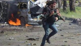 Suriyeli fotoğrafçının yaralı çocuğu taşıdığı an