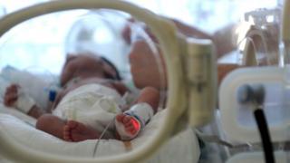 Foto de archivo de un bebé en una incubadora