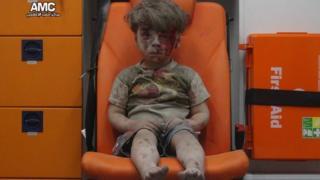 17日のアレッポ空爆で負傷したという5歳のオムラン・ダクニーシュちゃんの写真を、反政府組織「アレッポ医療センター」が公表した。