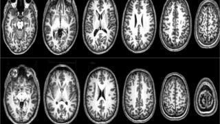 Imágenes de resonancia magnética del cerebro