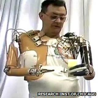Man with bionic arms