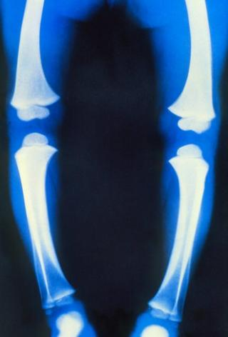 An X-ray showing the legs of someone with rickets.