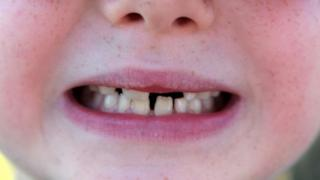 A close-up of a young boy's teeth