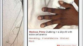 photo showing a symptom of sickle cell anaemia