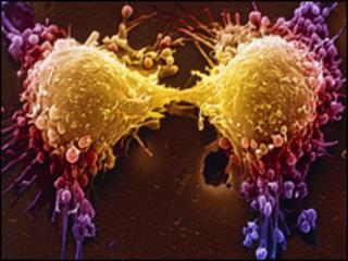 Cancer cell dividing, SPL