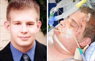 David Baker before and after the attack that left him in a coma