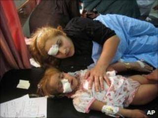 A wounded Iraqi woman and her daughter are treated at a hospital after a car bombing in Tuz Khormato, in northern Iraq