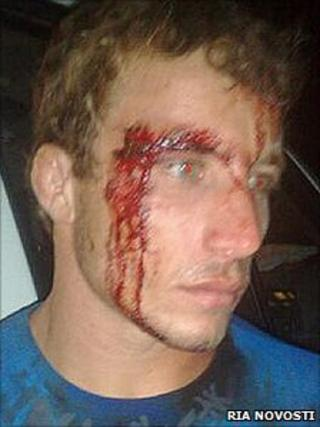 Victim of clash in Don summer camp, Tuapse, Krasnodar, Russia (Copyright: RIA Novosti)