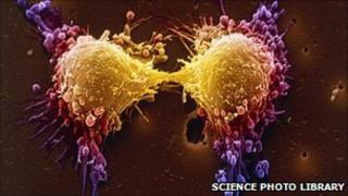 Coloured scanning electron micrograph (SEM) of two prostate cancer cells in the final stage of cell division (cytokinesis)