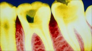 Coloured X-ray showing tooth decay
