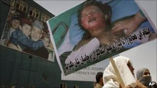 An Afghan demonstrator holds poster of an Afghan civilian allegedly injured by foreign forces in Afghanistan, during a demonstration in Kabul, Afghanistan on Sunday, Aug. 1, 2010.