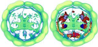 Platynereis brain (EMBL/R.Tomer)
