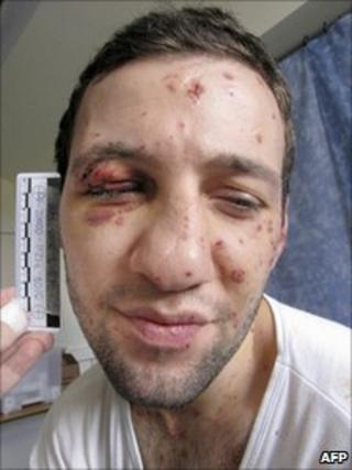 Bomb suspect Lors Dukayev (Danish police handout photo)