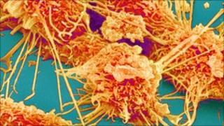 Colon cancer cells