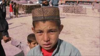 Afghan boy with suspected case of leishmaniasis