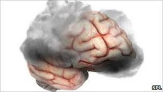 Brain - depression