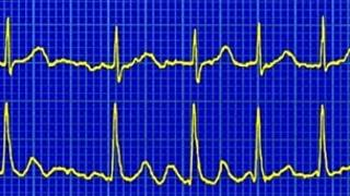 Atrial fibrillation on a heart trace called an ECG