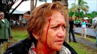 An resident of Easter Island with a pellet gun wound to her head (4 Dec 2010)