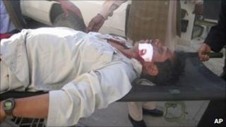 A wounded Afghan man is carried away from the scene of the attack in Gardez - 5 December 2010