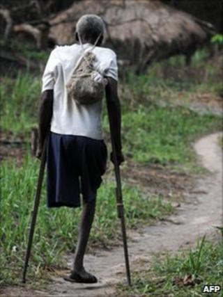 Man in Ngilima, north-eastern Congo.