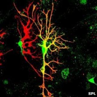 Brain tissue (SPL)