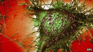 Alzheimer's Cell