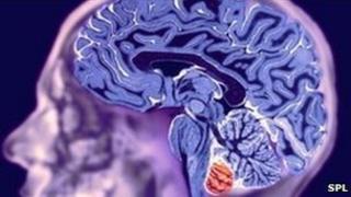 MRI scan of healthy brain