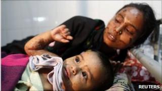 Acids attack victims in Bangladesh