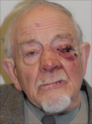 John Astman, 83