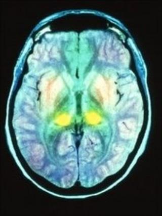 MRI of CJD brain scan