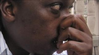 Man holding his nose