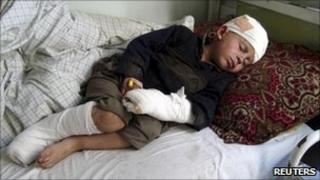 "A boy, injured during a NATO air strike, lies on a hospital bed in Afghanistan""s eastern Kunar province"