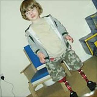 Archie Barton - five-year-old who lost his legs to meningitis