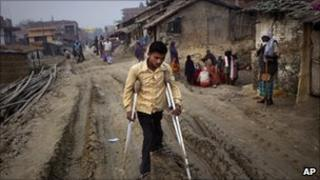 A Polio victim in India