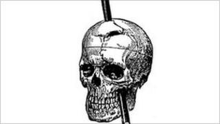 Drawing of Phineas Gage showing path of iron rod through his brain