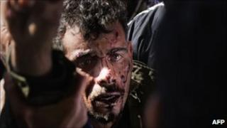 A wounded rebel is brought to Ras Lanuf hospital after fighting in Bin Jawad - 6 March 2011