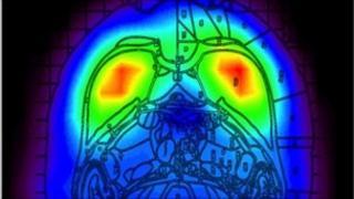PET scan of moving rat (Nature Methods)